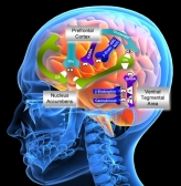 alcohol-addiction-brain-scan